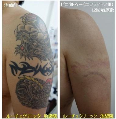 タトゥー除去ピコレーザー、12回、腕、黒、赤、黄色