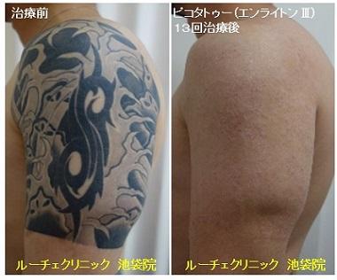 タトゥー除去ピコレーザー、13回、腕、黒