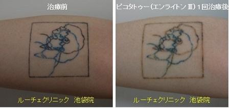 タトゥー除去ピコレーザー、1回、腕、黒、青