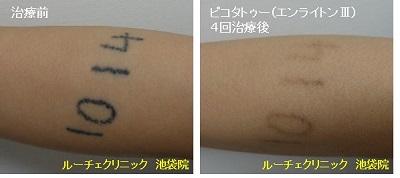 タトゥー除去ピコレーザー、4回、腕、黒