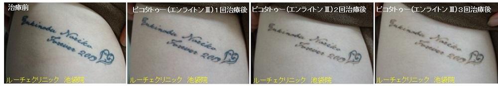 タトゥー除去ピコレーザー、3回、足、黒