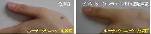 タトゥー除去ピコレーザー、1回、手、黒