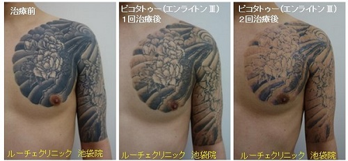 タトゥー除去ピコレーザー、2回、腕~胸、黒