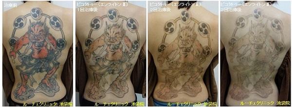 タトゥー除去ピコレーザー、3回、背中、黒、赤