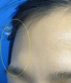 注入前は眉毛の部分が骨ばって突出しています。