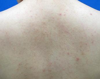 Befor 背中に赤ニキビがたくさんあります。