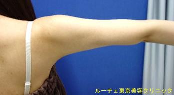 二の腕が細くなったことが分かります。ぷにぷにのお肉がなくなりました。凹凸もありません。