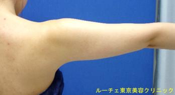 二の腕の脂肪がきになります。