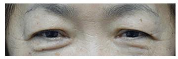 非常にたるみが強い状態です。特に目尻側の皮膚が二重まぶたのラインを 完全に覆ってしまい、一重まぶたになってしまっています。 まぶたが重く厚ぼったい印象にみえます。 たるんだ皮膚の重さにより目が細くなり、黒目も隠れてしまっています。