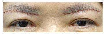 手術直後 手術直後は皮膚を切って縫っているので、傷跡が赤い線のようが見えます。 腫れが少しありますが、既に二重まぶたのラインが現れて、目も開くようになりました。皮膚だけでなく、皮下組織をしっかり取り除いたので重さが取れ、この時点で既に目の開きやすさを実感されています。