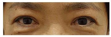 手術1か月後 手術後1か月経過すると目がしっかり開き、二重まぶたもすっきとした自然になりました。 傷跡はわかりません。