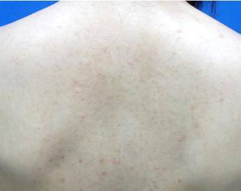 After ニキビ水光注射を2回行いました。 赤ニキビが減りました。継続治療で更にきれいにできます。