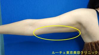 二の腕が細くなりました。凸凹していません。