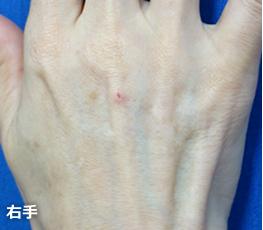 特に腱がしっかりと 浮き出て、血管の青筋も 目立っています。
