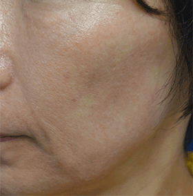 頬骨下から頬全体に広がるくぼみがあります。