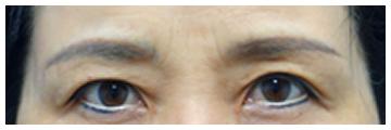 手術前 一部アートメイクが入っている方です。眉毛にもアイラインにも入ってます。このような方でも手術可能です。手術前はまぶたの皮膚がしっかり被ってしまって二重まぶいたのラインが隠れてしまっています。