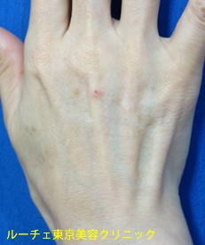 皮下脂肪が老化に減ってしまったため、腱や血管が浮いていて筋張っています。年齢を感じさせる手の甲です。