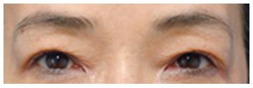 手術前は二重まぶたが厚ぼったく、二重まぶたのラインが重い皮膚と皮下組織で狭くなっています。睫毛も下に押しつぶされています。