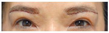 手術直後の写真です。しっかりと皮膚、皮下組織を取りました。 二重瞼のラインが出てきました。