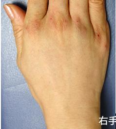 腱や血管がういてた手の甲がナチュラルにフラットになりました。