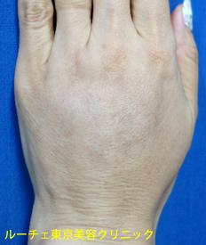 手術後1か月: 脂肪注入により、腱や血管が再び脂肪に埋もれて目立たなくなったため、若々しい手の甲になりました。手術直後はやや腫れがありますが、時間とともに落ち着きます。