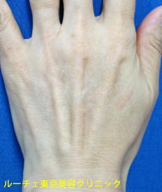 特に腱がしっかりと浮き出て、血管の青筋も目立っています。