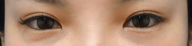 蒙古ヒダがあり、丸いカーブの目頭になっています。 目が離れすぎているわけではないので、控えめに行いました。
