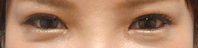 少し切れ長の目元になり、綺麗な目になりました。 目と目の距離も近づきすぎず、自然な感覚になっていますね。