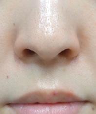 小鼻を気持ち小さくできるといいな というご要望でした。