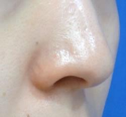 鼻の外側は切りたくない、というご希望でした。