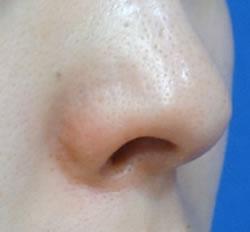 鼻の外側に傷跡はありません。