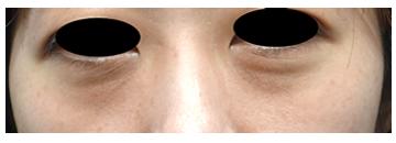 手術前 涙袋の下にクマがあります。 眼窩脂肪による膨らみです。