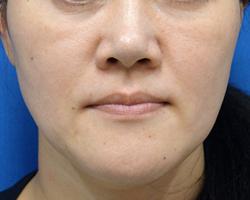フェイスラインが四角いシルエットになっています。 皮膚の下がり、頬の脂肪の下がりによるものです。