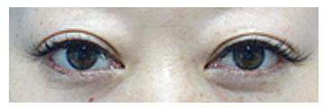 もともとしっかりとした二重瞼ですが、年々幅が狭くなってきて目が小さくなったように感じたそうです。