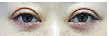 手術後7日(抜糸時) まだ腫れがあり、二重の幅が広く感じられます。
