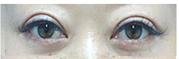 手術後1か月 かなり腫れはひきましたが、まだまつ毛と二重のラインの間に若干むくみがあります。目はしっかりと開いており、たるんだ皮膚がなくなって目を開けやすくなったため黒目が大きくなりました。まだ右側の二重の方が左に比べると少し広く感じられます。