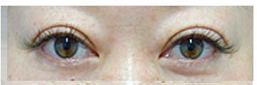 手術後3か月 二重のラインとまつ毛の間のむくみがしっかりとれ、すっきりしました。 左右の二重の幅も同じになりました。目を閉じた時の傷跡もほとんどわかりません。