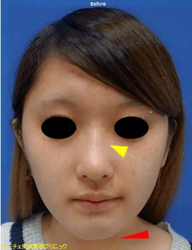 鼻筋の光のラインがぼやけています。