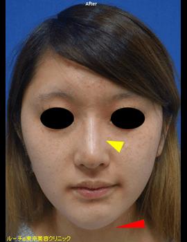 注入後、鼻筋の光のラインがくっきりとし、 綺麗な鼻筋になりました。