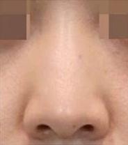 鼻筋のラインがぼやけています。