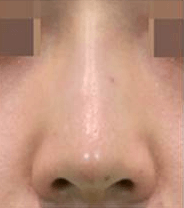 注入後、鼻筋のラインがはっきりとし、 鼻先まで綺麗になりました。
