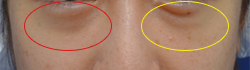 手術前 目の下の眼窩脂肪が膨らんでおり、膨らみの真下にはくぼみがあります。膨らみとくぼみの段差により影が落ちています。