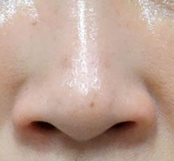 小鼻が外側に広がり男性的な印象を与える鼻です。
