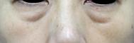 皮膚のたるみがあります。目の下の眼窩脂肪が膨らんでおり、膨らみの真下にはくぼみがあります。膨らみとくぼみの段差により影が落ちています。