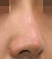 注入後、鼻筋、鼻先にメリハリがつき 綺麗鼻になりました。