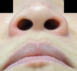 鼻の穴が丸く、鼻先も丸く平たんになっています。