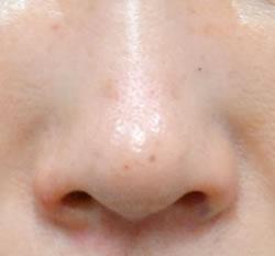 小鼻の幅がぐっと小さくなり、女性的なかわいい小鼻になりました。鼻先までスッと筋が通りました。