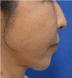 手術1週間後 ゴルゴ線が消えて頬が高くなりました。腫れはありません。