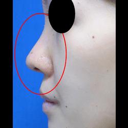 手術直後 丸みのあった鼻先が、スッと尖った綺麗なはなさきになりました。