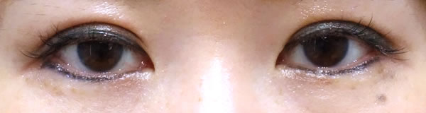 Befor 垂れ目形成、眼尻切開を同時に行いました。